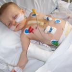 Braveheart Nathaneal after his open heart surgery x